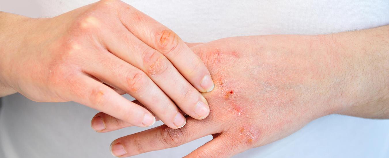 Поверхностные бактериальные инфекции кожи